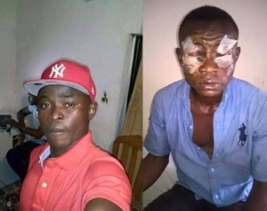 Man Left Blinded After He Was Attacked With Acid (See Graphic Photos)